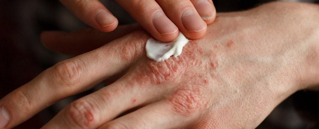 Chàm (eczema)