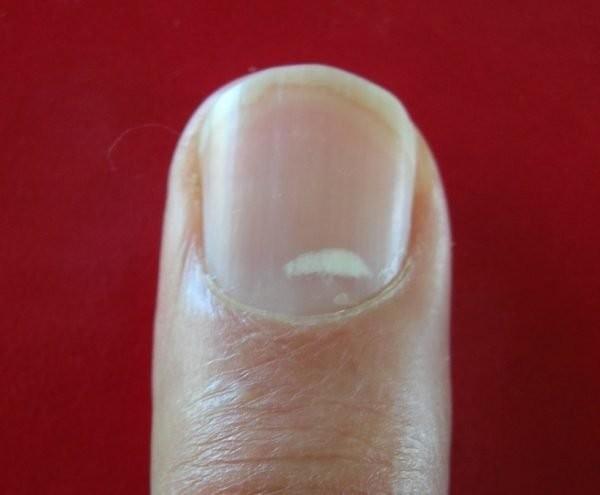 Đừng xem thường tình trạng hột gạo trên móng tay!