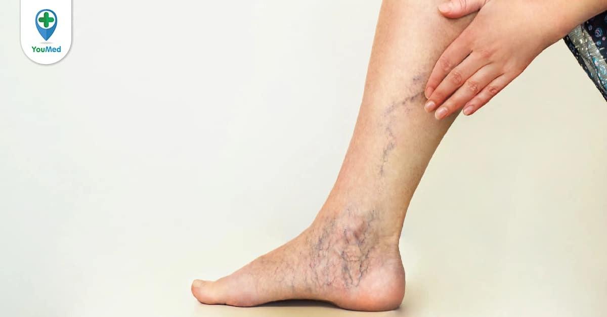 Giãn tĩnh mạch chân
