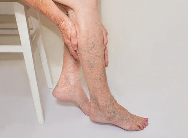 Giãn tĩnh mạch chân: Đừng thờ ơ với chính mình!