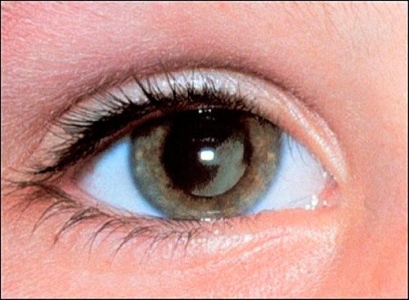 Đục thuỷ tinh thể (cườm khô): Dấu hiệu và cách điều trị