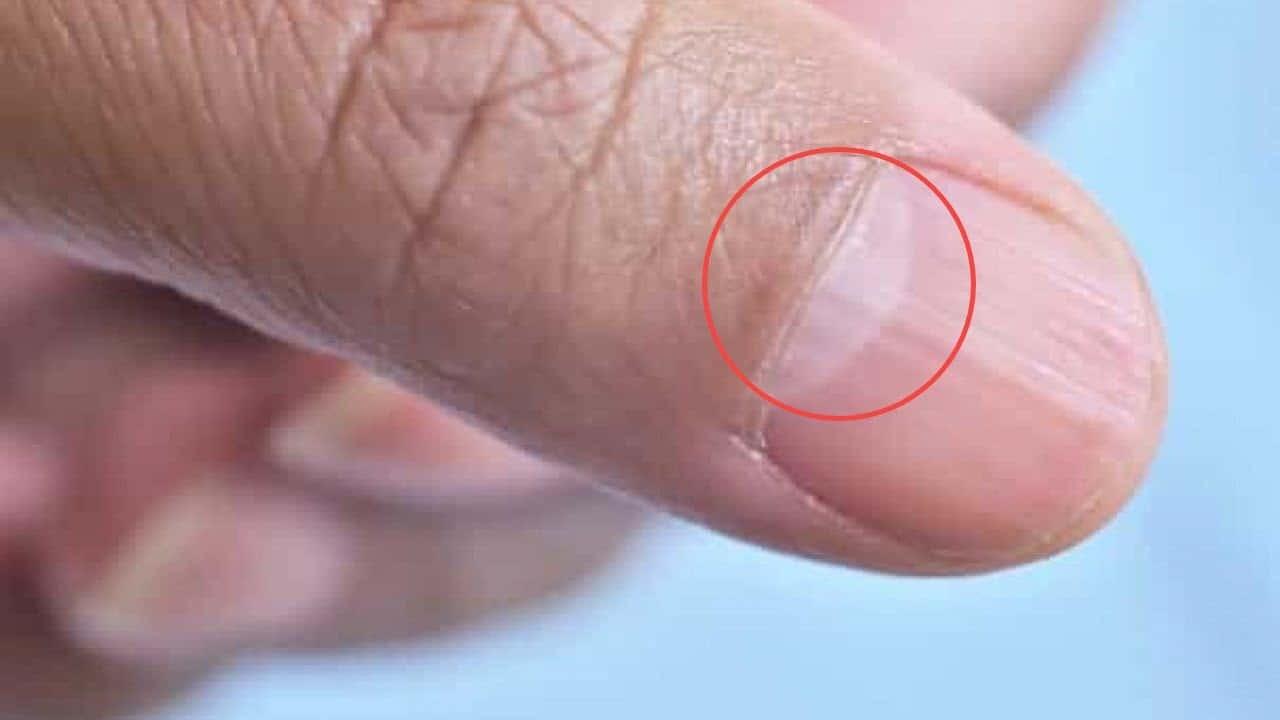 Hình bán nguyệt trên móng tay cho bạn biết điều gì