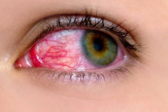 Đau mắt đỏ: Dấu hiệu và cách điều trị hiệu quả