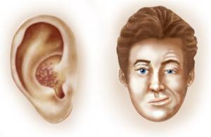 Triệu chứng của bệnh zona thần kinh
