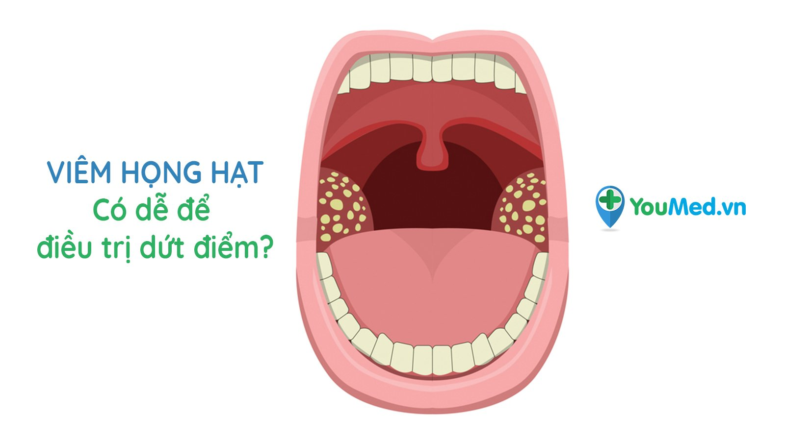 Viêm họng hạt là gì? Có dễ điều trị dứt điểm?