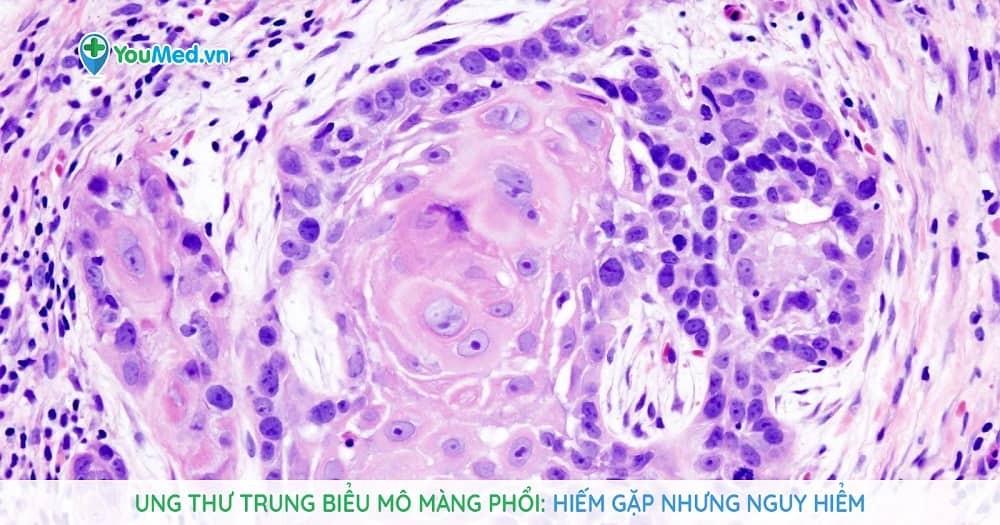 Ung thư trung biểu mô màng phổi: Hiếm gặp nhưng nguy hiểm