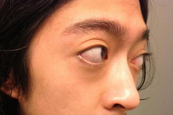 Mắt bị lồi do bệnh Basedow