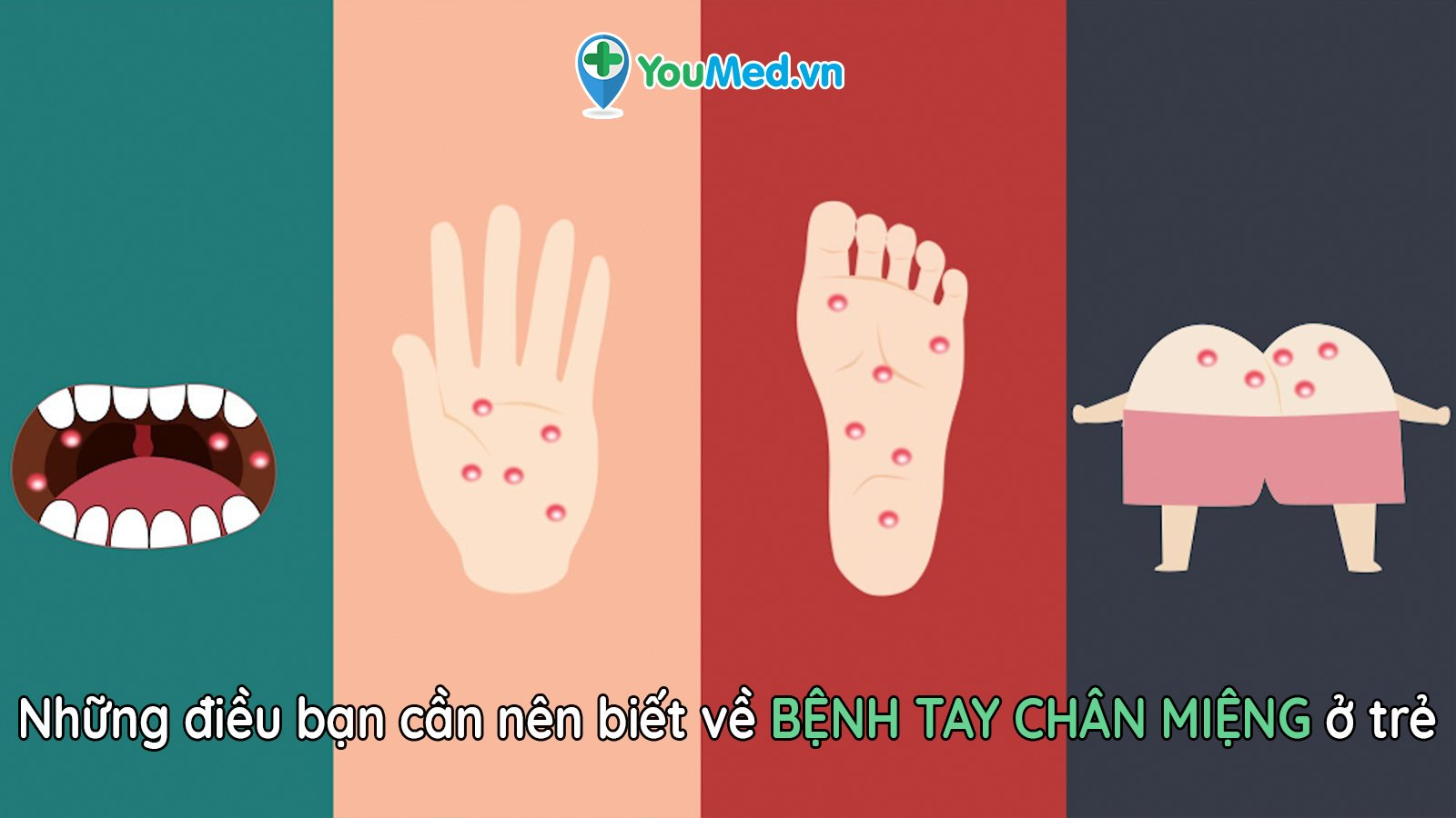 Bệnh tay chân miệng ở trẻ: Điều bố mẹ phải biết