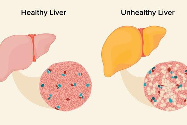 So sánh gan khỏe mạnh và gan mắc bệnh