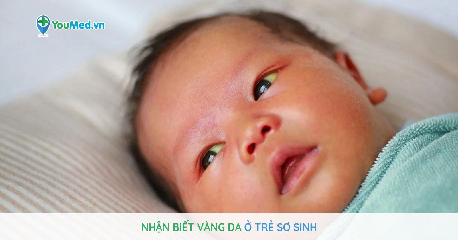 Nhận biết vàng da ở trẻ sơ sinh