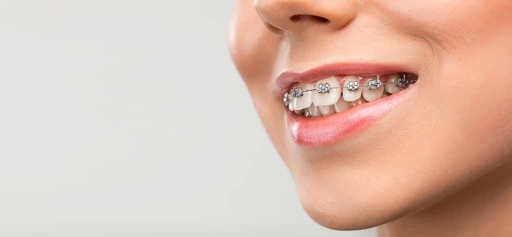 Chỉnh hình răng mặt