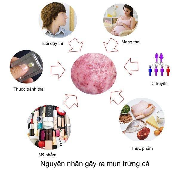 Các nguyên nhân khiến da bị mụn