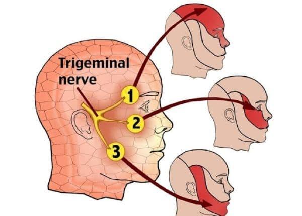 đau dây thần kinh v