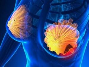 Có nhiều yếu tố khác nhau khiến cho một số phụ nữ dễ phát sinh ung thư vú hơn