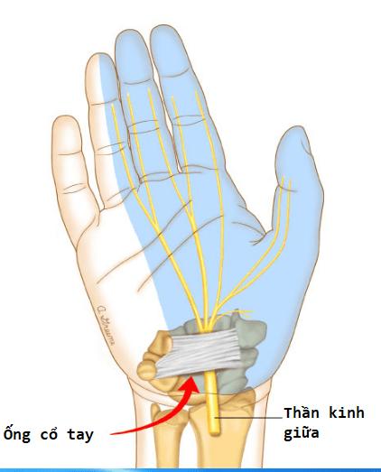 hội chứng ống cổ tay là gì