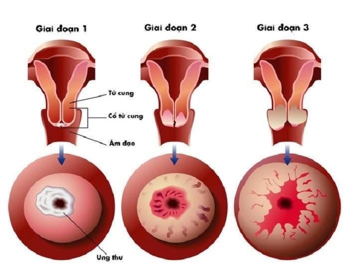 ung thư cổ tử cung 1