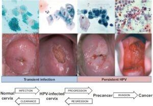 Ung thư cổ tử cung 5