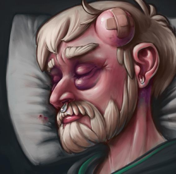chấn thương đầu 2
