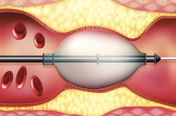 can thiệp nội mạch