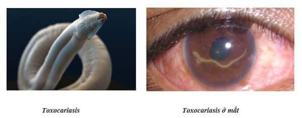 Mức độ tổn thương của cơ thể cùng với các triệu chứng tùy thuộc vào số lượng ấu trùng