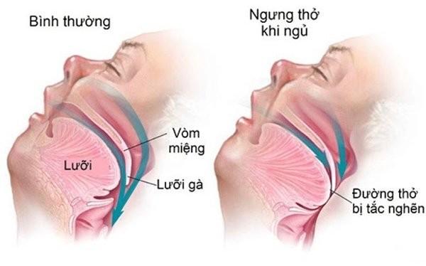 Hội chứng ngưng thở khi ngủ có 2 dạng