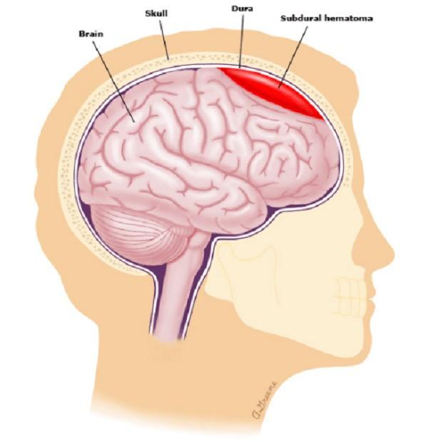 Subdural hematoma: máu tụ dưới màng cứng