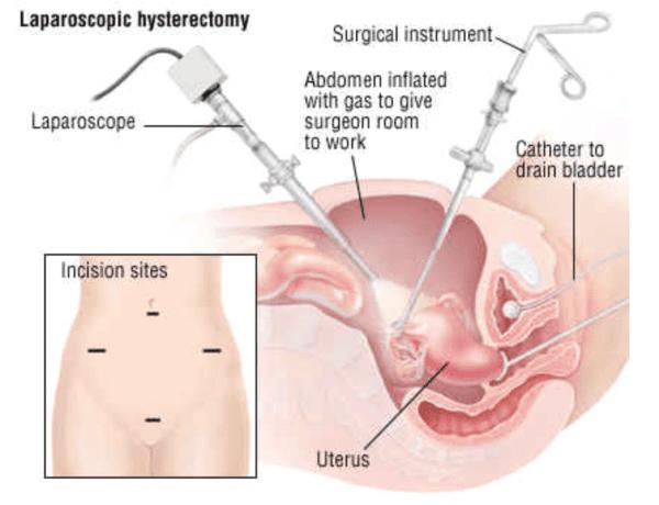 phẫu thuật xâm lấn tối thiểu