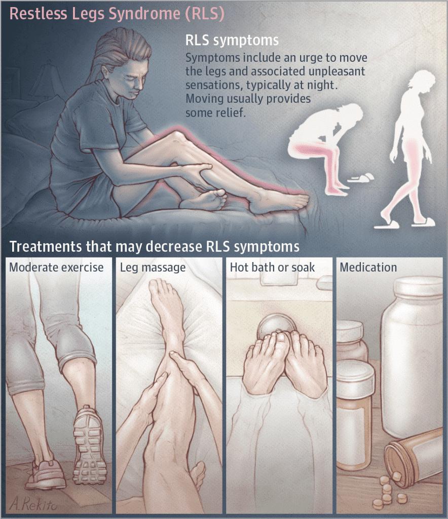 hội chứng chân không yên 1