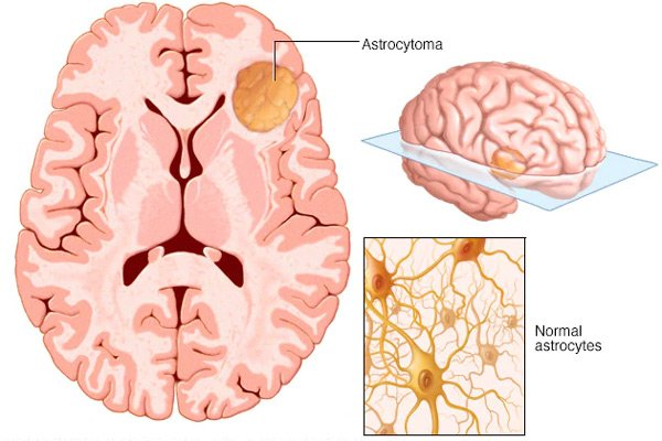 Astrocytoma: U sao bào. Normal astrocytes: Những tế bào hình sao bình thường
