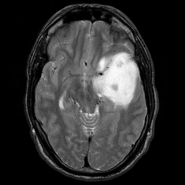 Hình ảnh sao bào trên phim cộng hưởng từ MRI