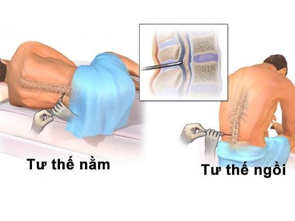 Các giai đoạn thực hiện chọc dò dịch não tủy