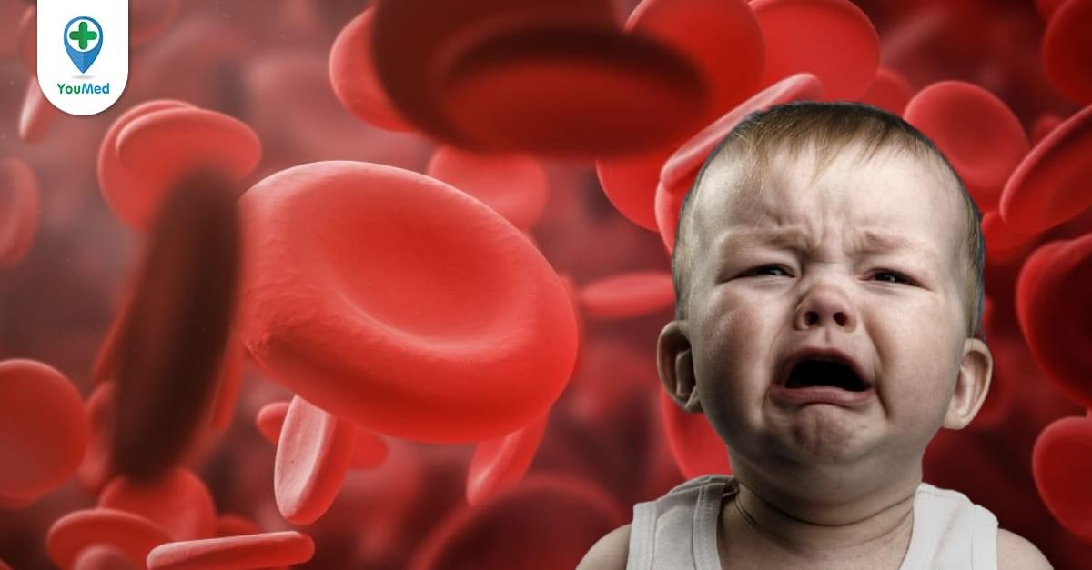 Trẻ bị thiếu máu