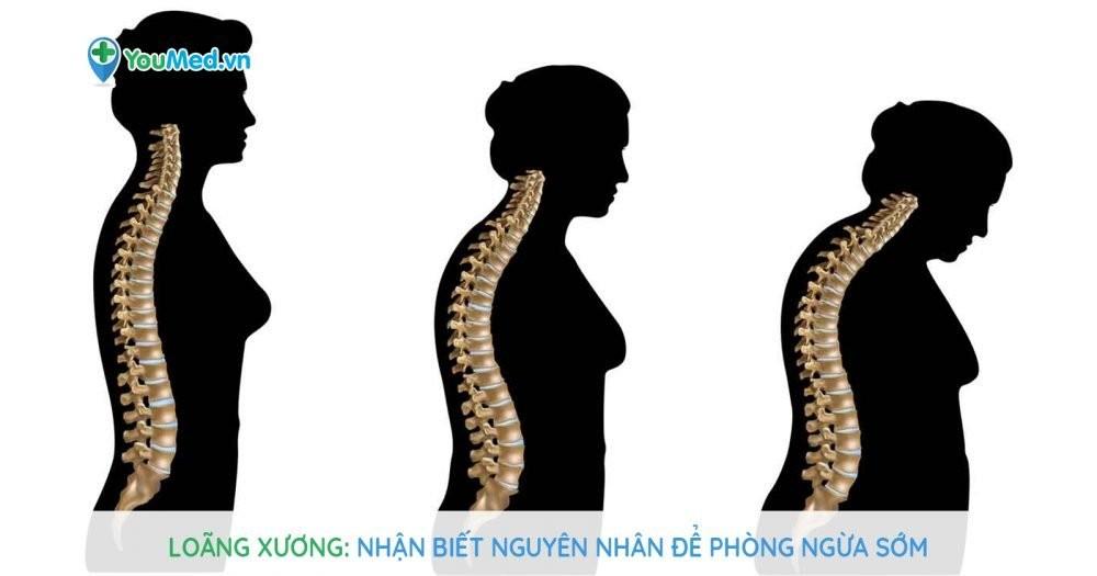 Loãng xương: Nhận biết nguyên nhân để phòng ngừa sớm