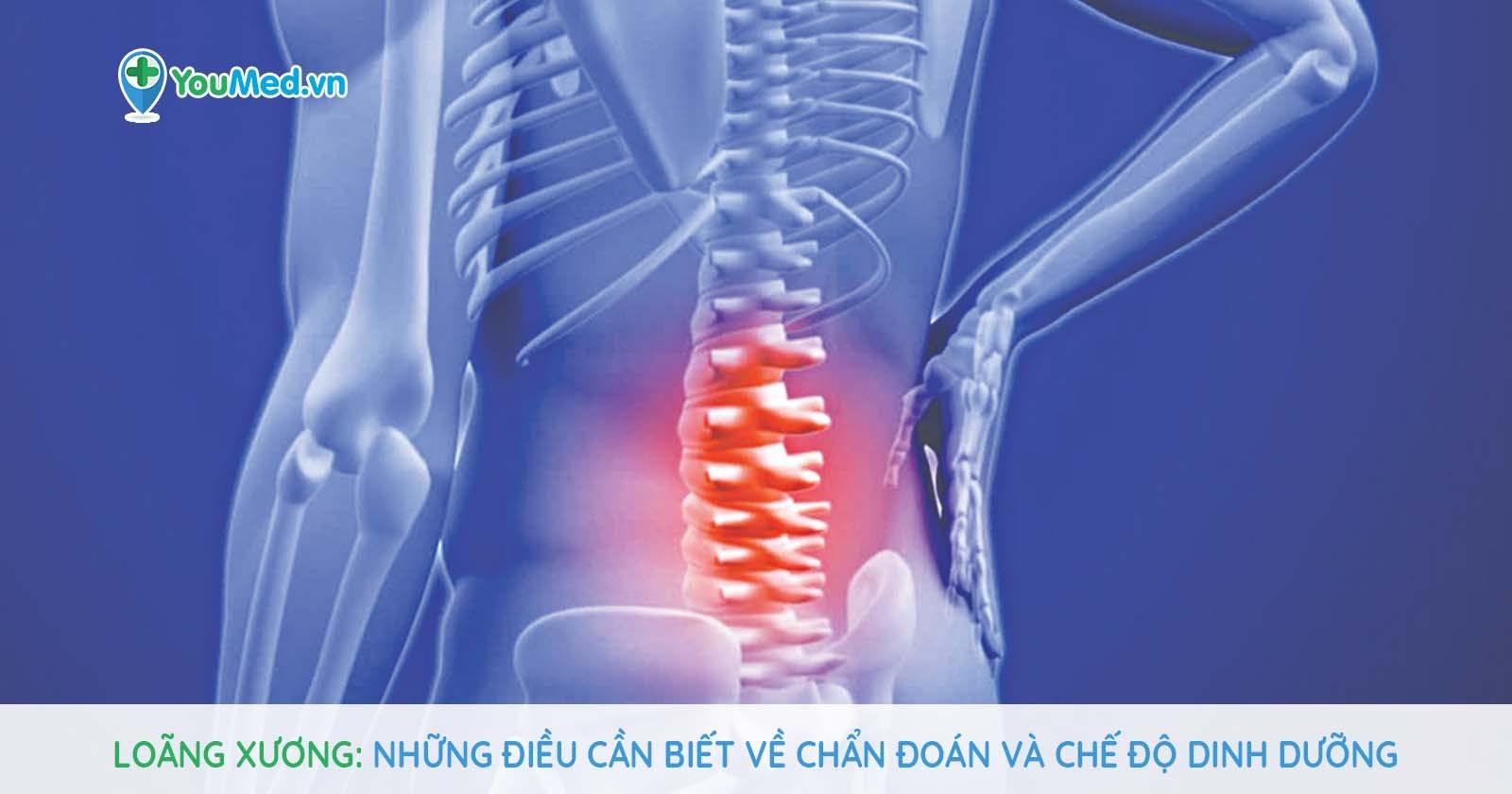 Loãng xương: Những điều cần biết về chẩn đoán và chế độ dinh dưỡng