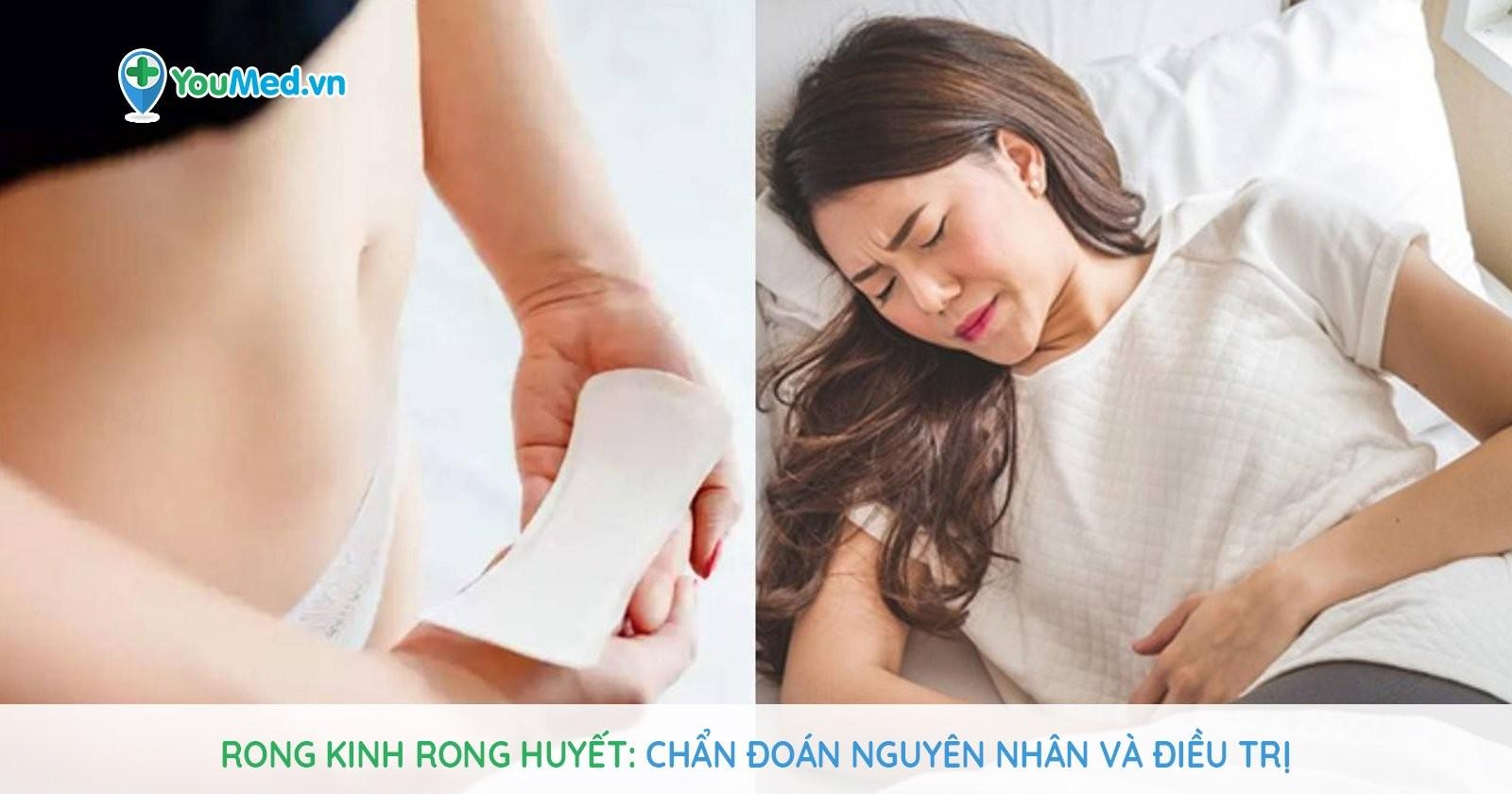 Rong kinh rong huyết: Chẩn đoán nguyên nhân và điều trị