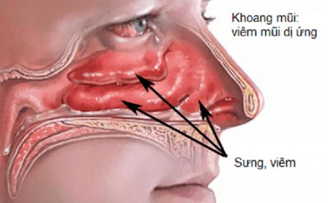 Viêm mũi dị ứng làm tăng nguy cơ xuất hiện polyp mũi