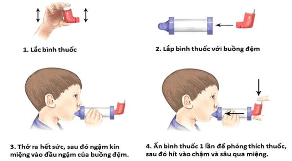 Hình ảnh minh họa hướng dẫn gắn buồng đệm với bình xịt định liều