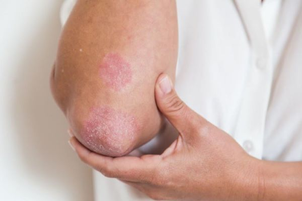 Bệnh chàm trên da thường có biểu hiện thành từng vùng da mẩn đỏ, khô và tróc vảy,...