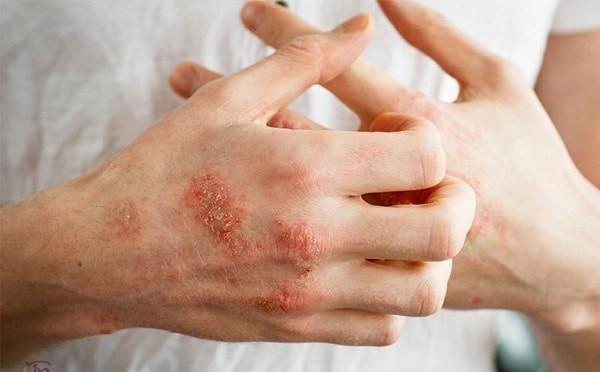 Chàm xuất hiện trên da thường do yếu tố gen và yếu tố môi trường gây nên