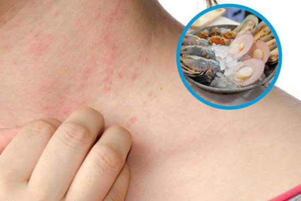 Triệu chứng dị ứng hải sản trên da
