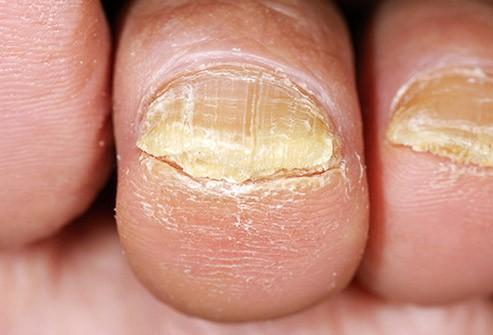 Nấm móng không thể tự khỏi nếu không được điều trị.