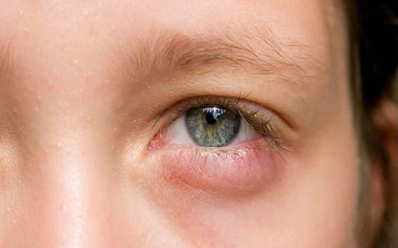 Laser gây tổn thương lên võng mạc, giác mạc, đồng tử và có thể làm mù mắt