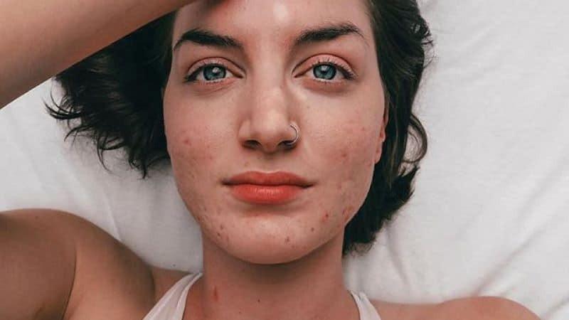Tia laser có thể gây ra các tác dụng phụ như: lõm da, đỏ da, bỏng da,...