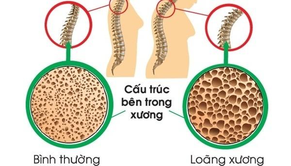 Loãng xương là gì - Cấu trúc tổ ong bên trong xương