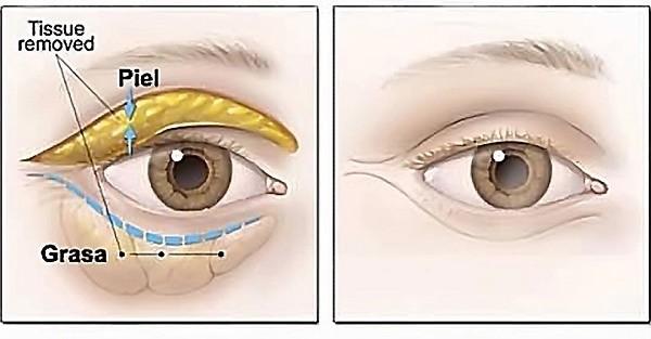 Mô mỡ thừa sẽ bị loại bỏ khi thực hiện cắt mí mắt