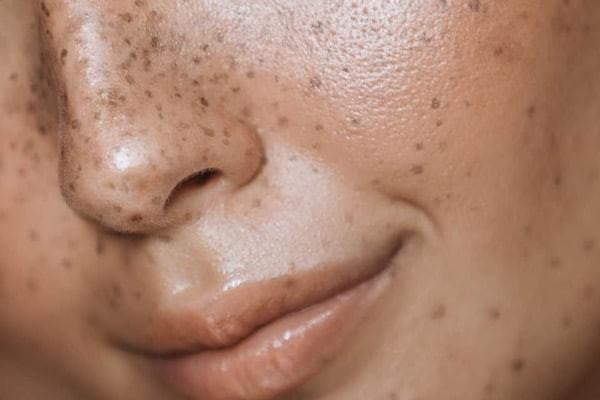 Nám da là tình trạng rối loạn tăng sắc tố da