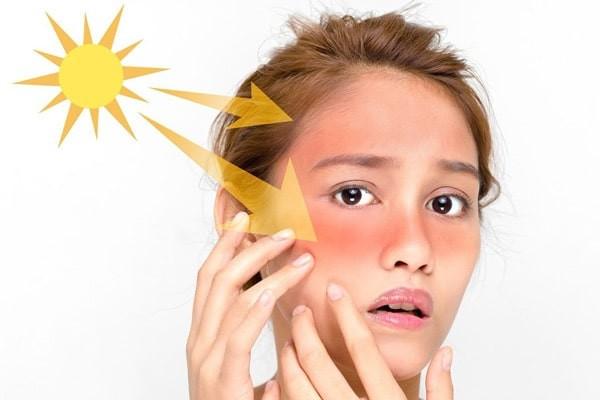 Ánh nắng mặt trời là một nguyên nhân gây nám