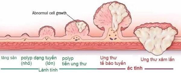 Quá trình diễn tiến thành ung thư của polyp dạng tuyến