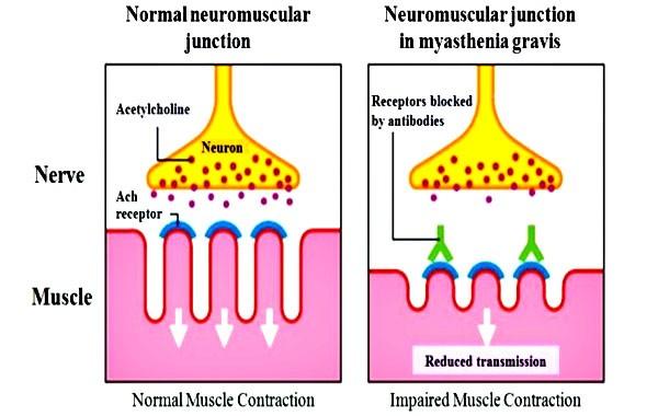 Nguyên nhân của bệnh nhược cơ là gì?