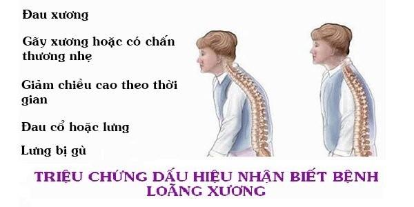 Triệu chứng loãng xương?